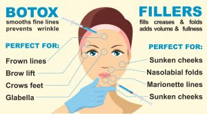 Botox and fillers benefits