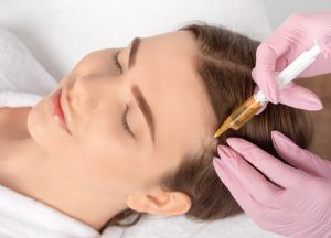 PRP hair restoration injections